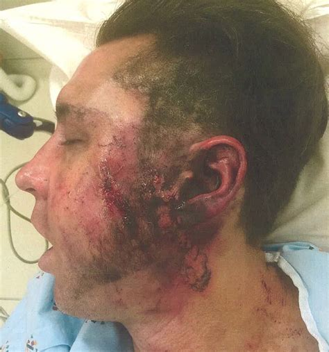 Former LA Galaxy Star Suffers Hole In His Cheek After E