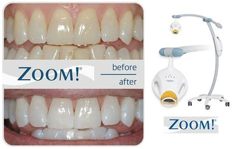 Philips Zoom! Tooth Whitening - JD Dental Care - Whiter