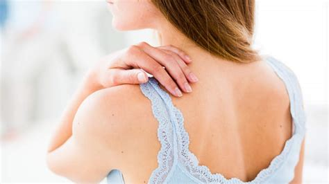 How to Live with Psoriasis | Hype - Latest News in Singapore
