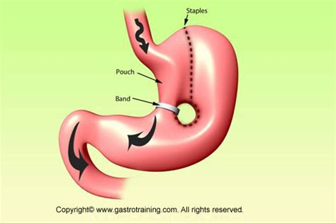 Gastroenterology Education and CPD for trainees and