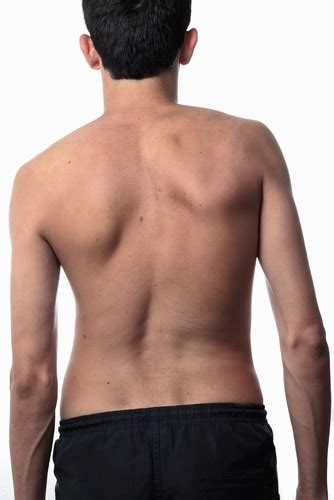 Treat Your Abnormal Spine Curvature Correctly | Fort
