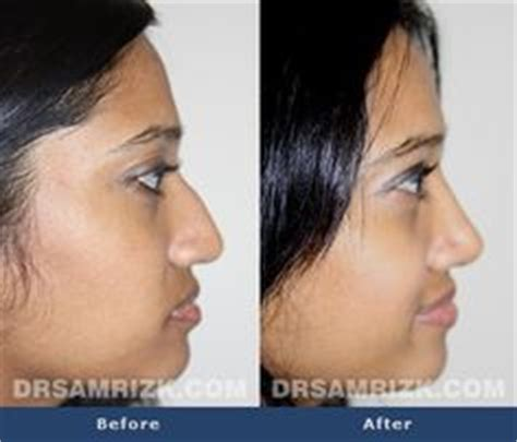 1000+ images about Before & After: Rhinoplasty on