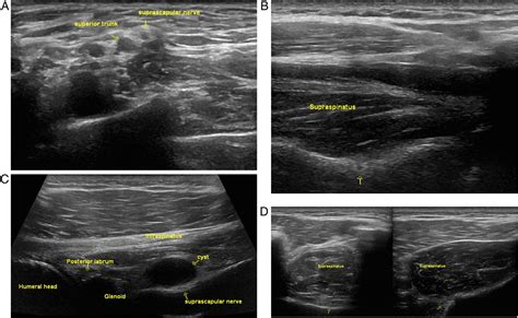 Ultrasound evaluation of focal neuropathies in athletes: a